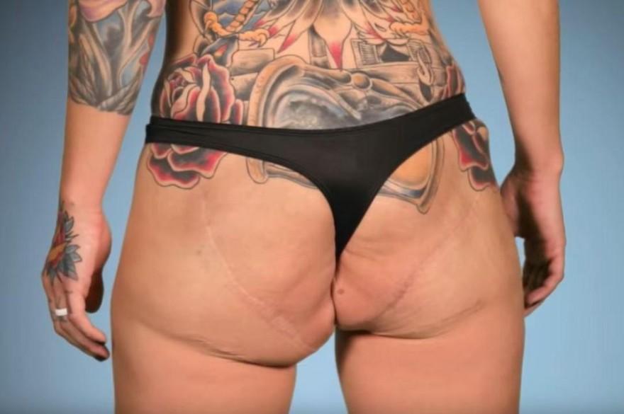 Удалили имплант из задницы (3 фото)