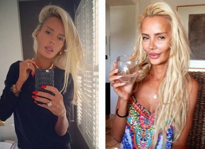 Известные российские красавицы до и после пластики (11 фото)