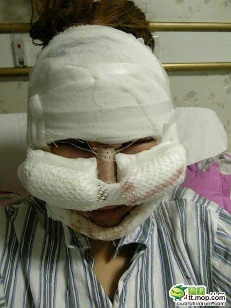 Девушка из Китая до и после пластической операции (13 фото)