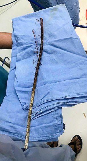 Индийский строитель получил необычную травму и выжил (6 фото)
