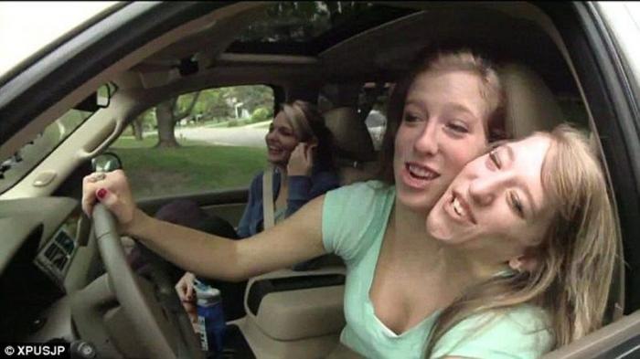 Как живут сиамские близнецы Эбигейл и Бриттани Хенсел (9 фото)