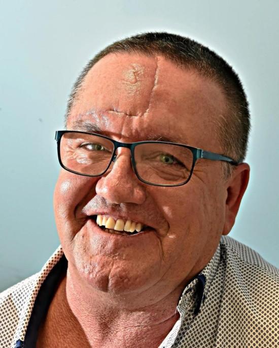 Мужчина перепутал раковую опухоль с прыщом (3 фото)