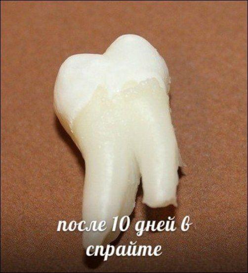 Зубы и популярные напитки (11 фото)