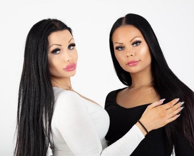 Две подруги захотели стать близняшками, но результат ужасный (6 фото)