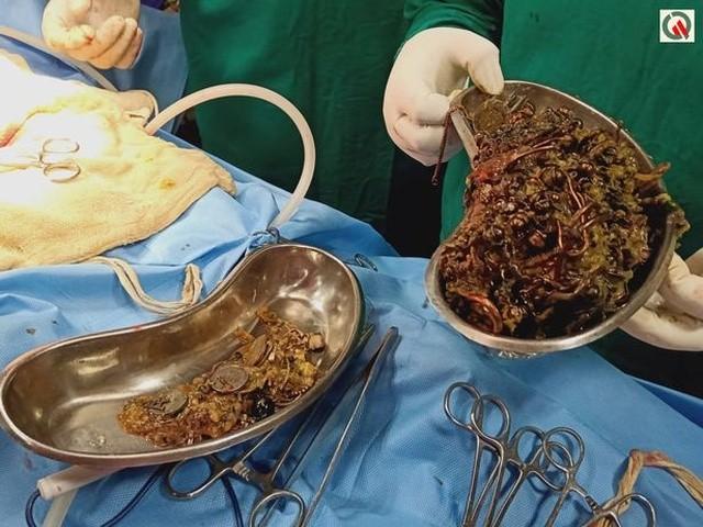 Один день из жизни индийских хирургов (4 фото)