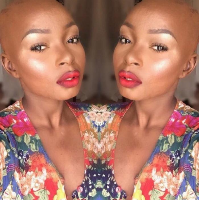 Девушка с сильнейшими ожогами лица показывает силу макияжа (10 фото)