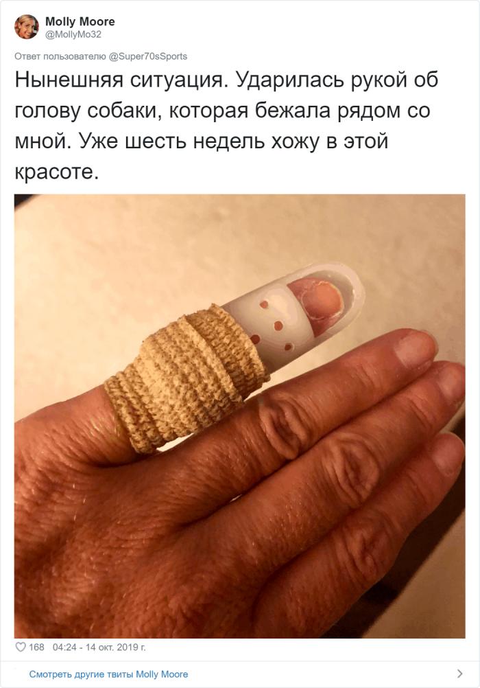 Пользователи рассказали о самых глупых травмах в своей жизни (18 фото)