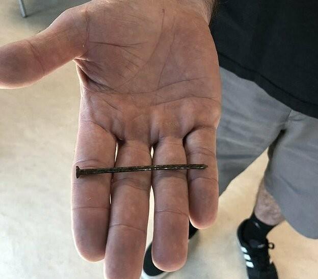 """Плотник из Техаса """"решил проверить""""стальное ли у него сердце (4 фото)"""