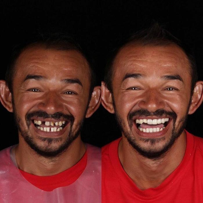 Если нет денег на стоматолога это не значит что нет улыбки (14 фото)