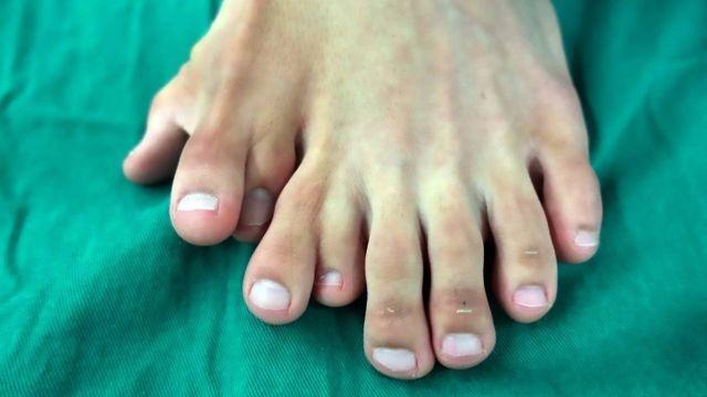 Парню из Китая пришлось 9 лет мучиться от полидактилии (2 фото)