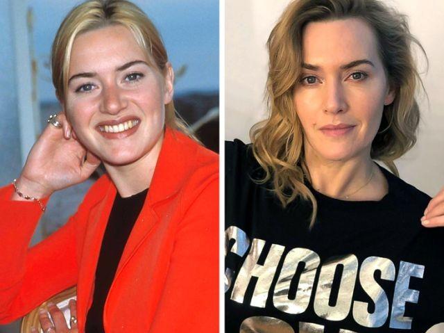 Знаменитые актрисы, которые отказались от пластики (10 фото)