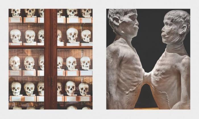 Уникальные музеи, которые не стоит посещать слабонервным (6 фото)