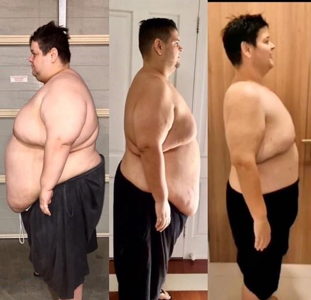 Эндрю Зед из Сиднея смог сбросить 201 килограмм без спортзала (8 фото)