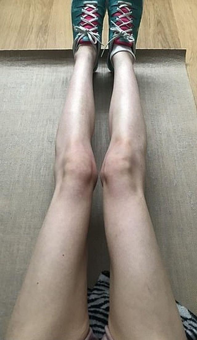 Британка чуть не умерла от анорексии но за полгода она смогла (8 фото)
