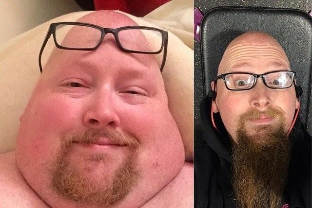 Мужчина перестал есть 20000 калорий в день вот что с ним стало (15фото)