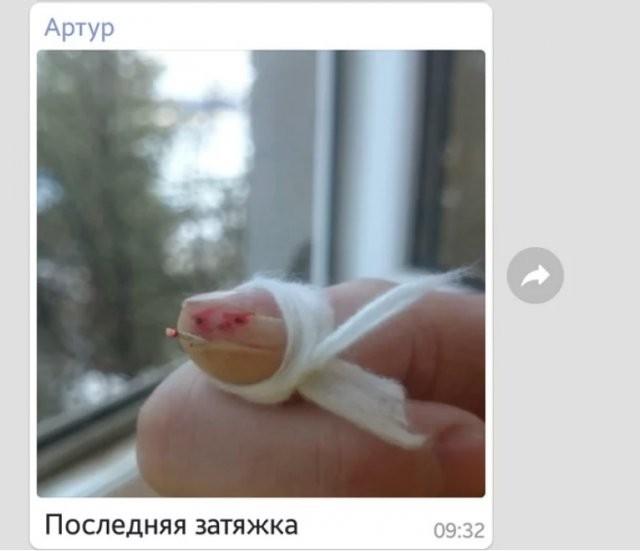 Порезанный палец стал героем мемов (7 фото)