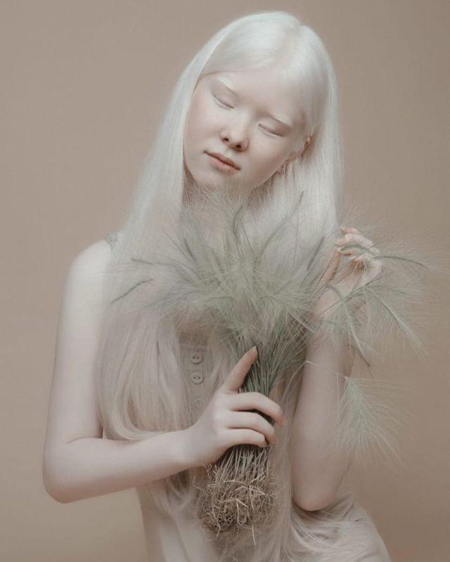 Асель и Камила - сестры-альбиносы из Казахстана (10 фото)