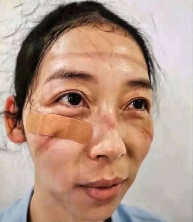 Посмотрите на лица врачей, которые борются с коронавирусом (5 фото)
