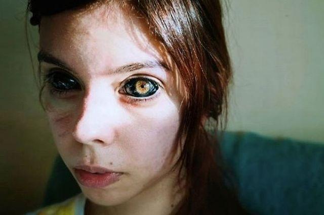 Девушка хотела выглядеть как свой кумир, но может ослепнуть (5 фото)