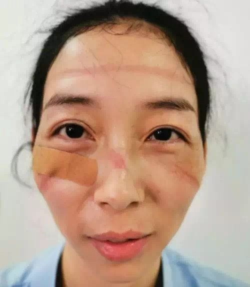 Как выглядят лица врачей после смен в больницах (7 фото)
