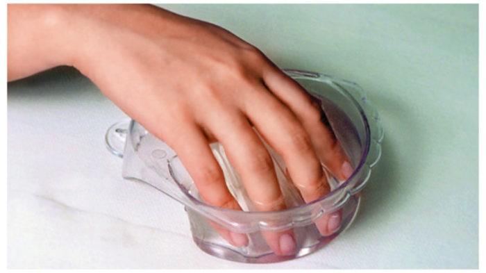 Как избавиться от суперклея, застывшего на пальцах (5 фото)