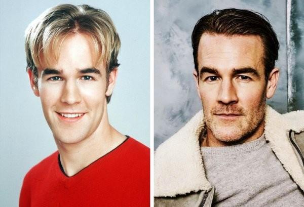 Как изменились актеры, которые были в прошлом популярны (15 фото)