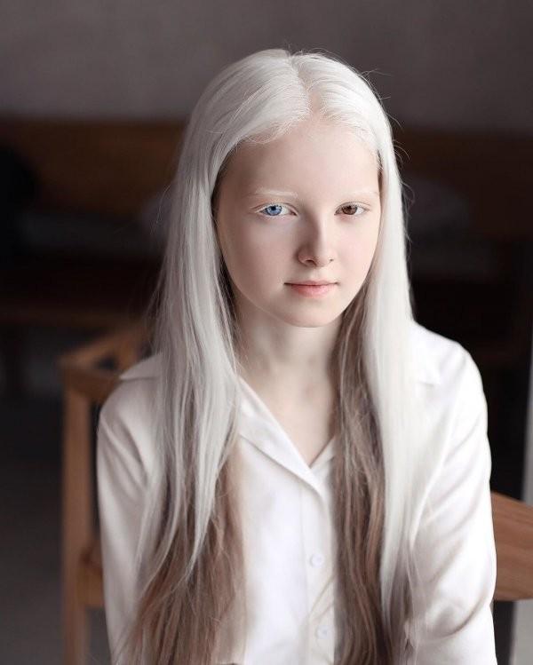 Амина Эпендиева - 11 летняя девочка из Чечни (7 фото)