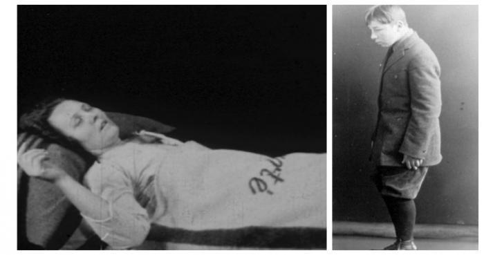 Сонная болезнь — загадочная эпидемия 20 века (5 фото)