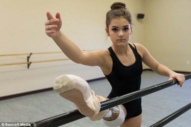Девушка с протезом ноги стала прекрасной танцовщицей (8 фото)