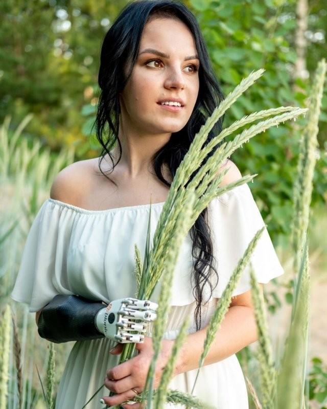 Маргарита Грачева, лишившаяся кистей рук, выходит замуж (13 фото)