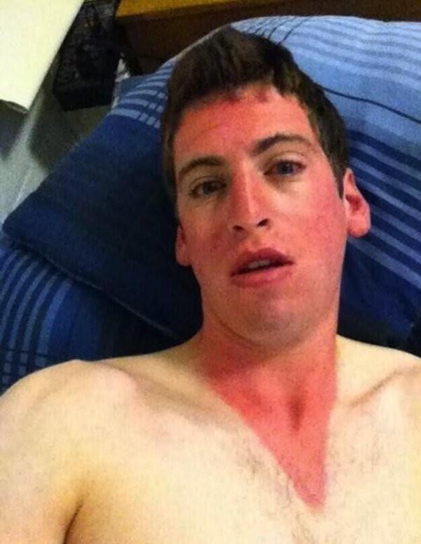 Вот почему лучше не брезговать кремом от загара (15 фото)
