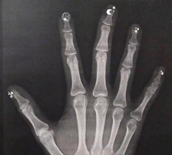 Занимательный рентген: подборка интересных снимков (16 фото)