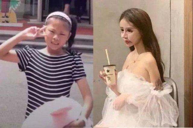 Звезда китайский соцсетей Little Z Nana: школьница перенесла сотню пластических операций, чтобы стать куклой (6 фото)