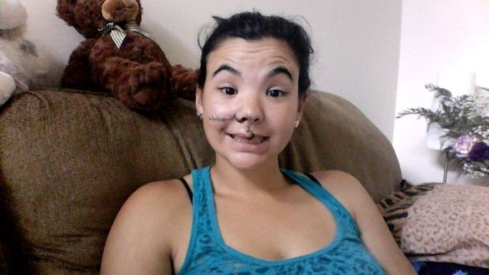 Лицо девушки после удара копытом лошади (10 фото)