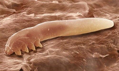 Ученые обнаружили, что каждую ночь по лицу человека ползают восьминогие клещи (4 фото)
