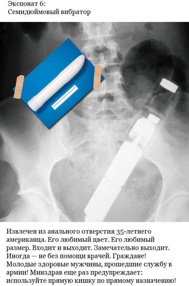 Странные предметы, которые оказались в телах пациентов (7 фото)