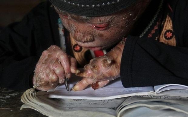 Мальчик-змея вынужден менять кожу раз в 41 день, чтобы не умереть (5 фото)