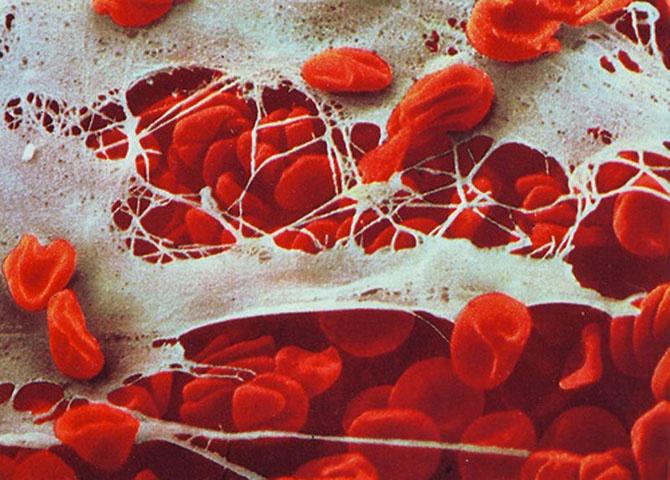 Наша невероятная иммунная система в микрофотографиях (17 фото)