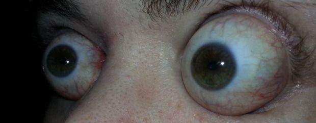 Самые выпученные глаза в мире (4 фото + 1 видео)