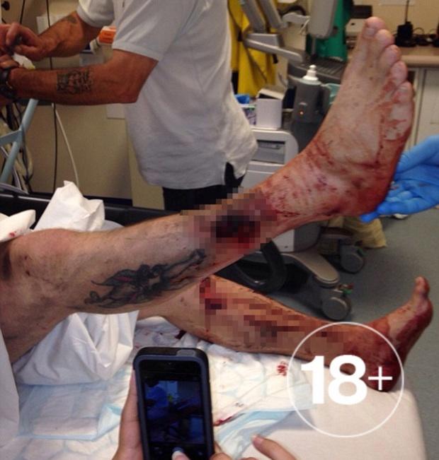 Британец чуть не потерял ногу, покурив электронную сигарету (2 фото)