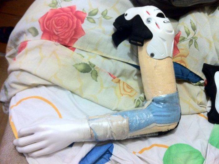 Как сделать самодельный протез для товарища (19 фото)