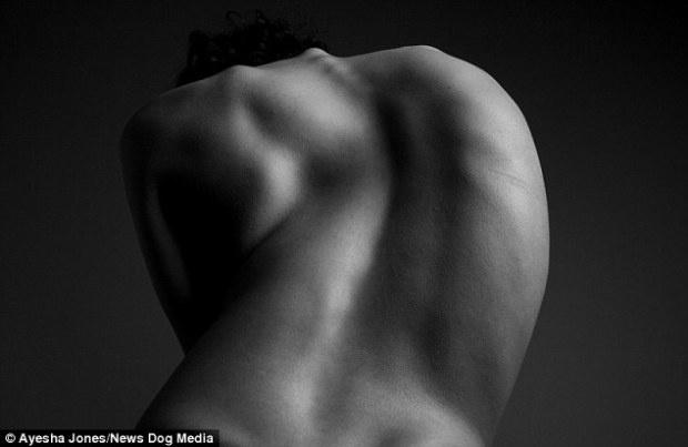 Уродливая спина не помешала девушке стать моделью (8 фото)