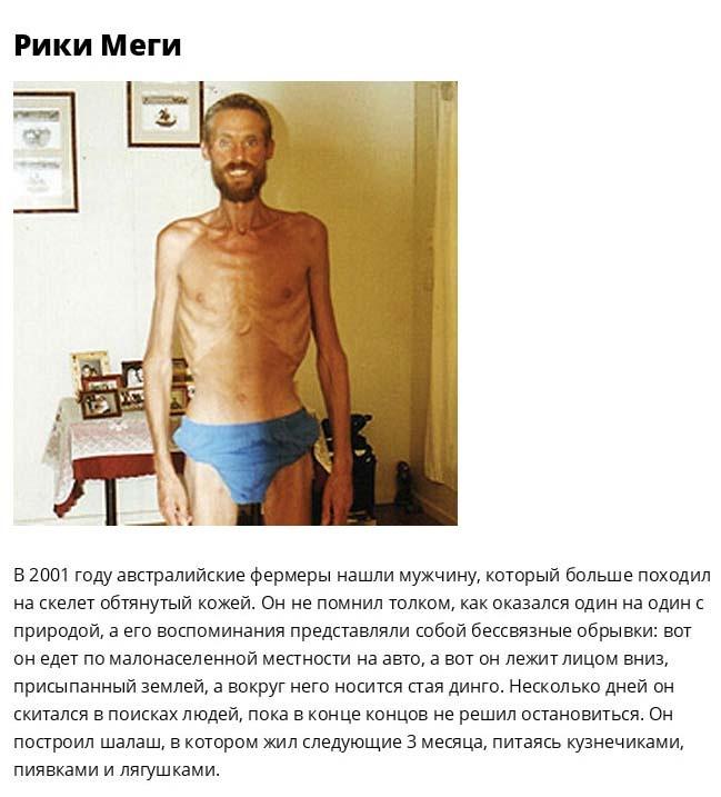 Люди, выжившие благодаря собственным силам и огромному желанию жить (11 фото)