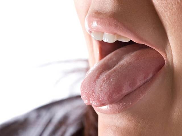 5 заболеваний, которые видно на языке (6 фото)