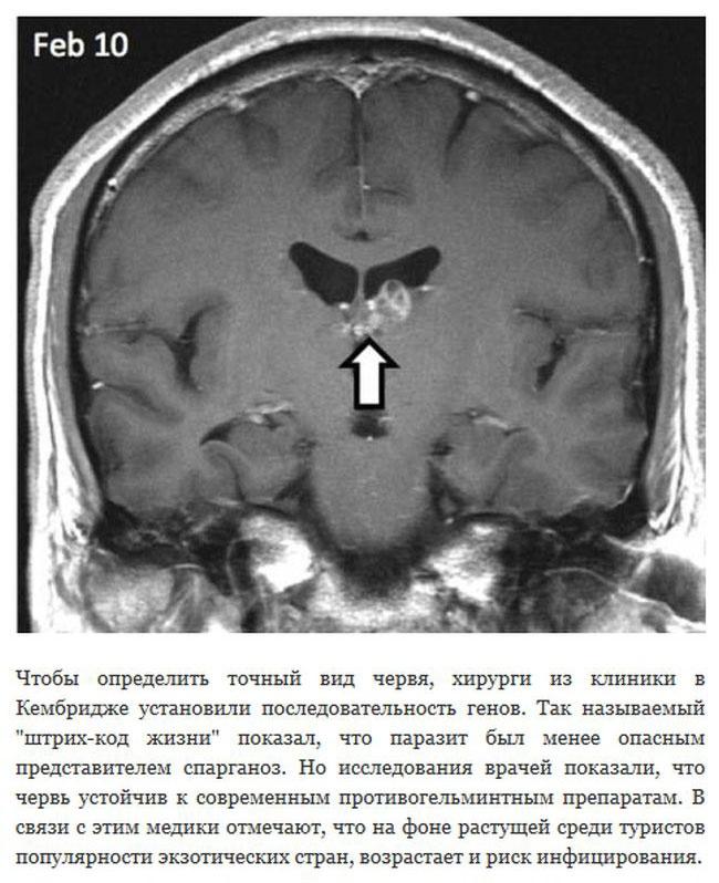 Великобритания: паразитический червь 4 года блуждает по мозгу человека (6 фото)