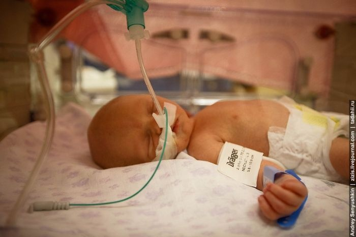 Репортаж из отделения реанимации недоношенных детей (21 фото)