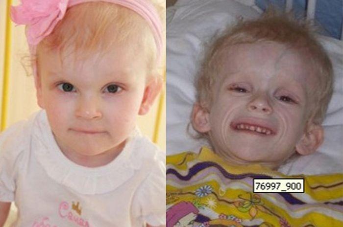 Тверь: спасение пятилетней Ани (4 фото)