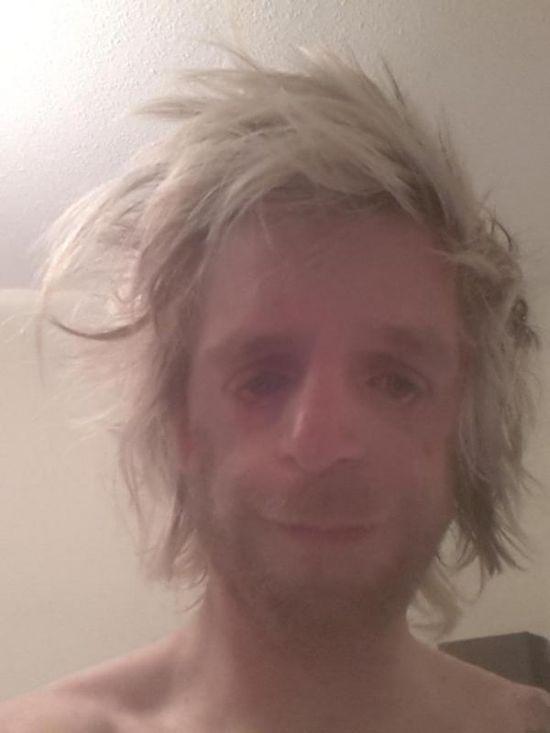 Великобритания: парень с редким генетическим заболеванием (26 фото)