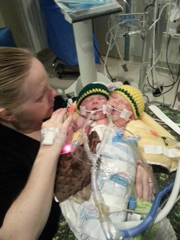 В Америке родился двухголовый ребенок (6 фото)