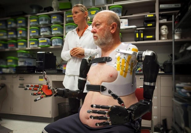 Первый человек с руками–манипуляторами, управляемыми сознанием (2 фото + 1 видео)